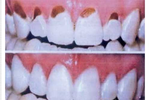 Lubang Pada Gigi Depan