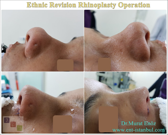 Ethnic Revision Nose job in Istanbul,Ethnic Revision Rhinoplasty Istanbul,Complicated Revision Rhinoplasty,