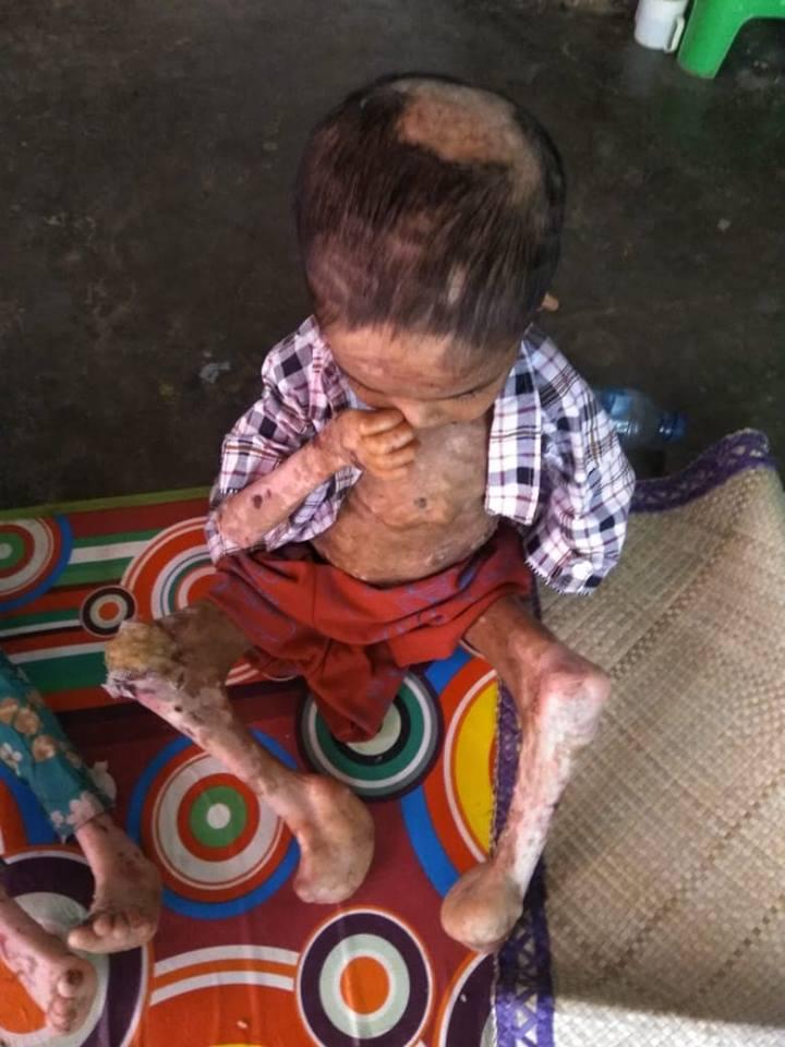 Bantu Kursi Roda untuk Anak Dhuafa penderita Disabilitas