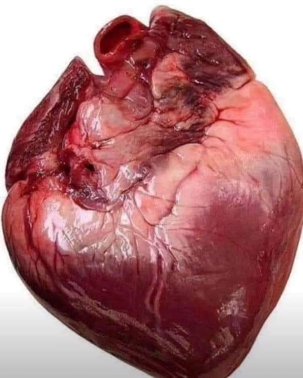Ήξερες Ότι Η Καρδιακή Προσβολή Και Το Νερό Πάνε Χέρι-Χέρι.