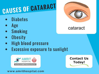 cataract-treatment-chennai