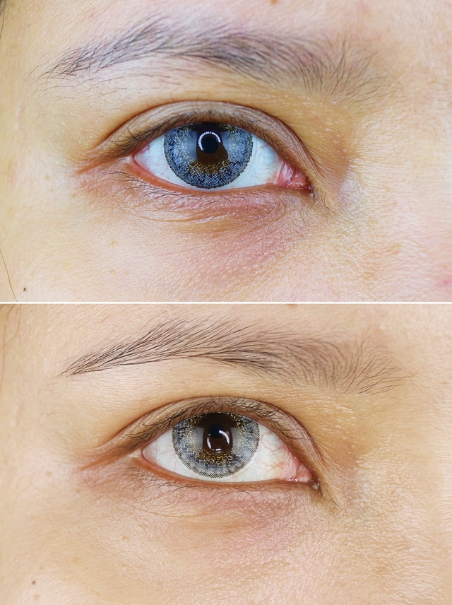 Before After Lacoco Eye Serum