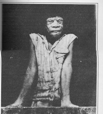 Com essa aparência essa mulher foi encontrada em 1970 em Minas Gerais