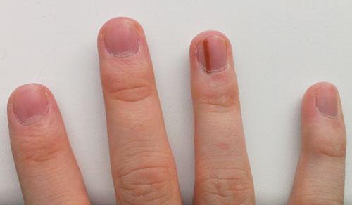 anh phan đức linh chia sẻ về dấu hiệu sức khỏe qua móng tay