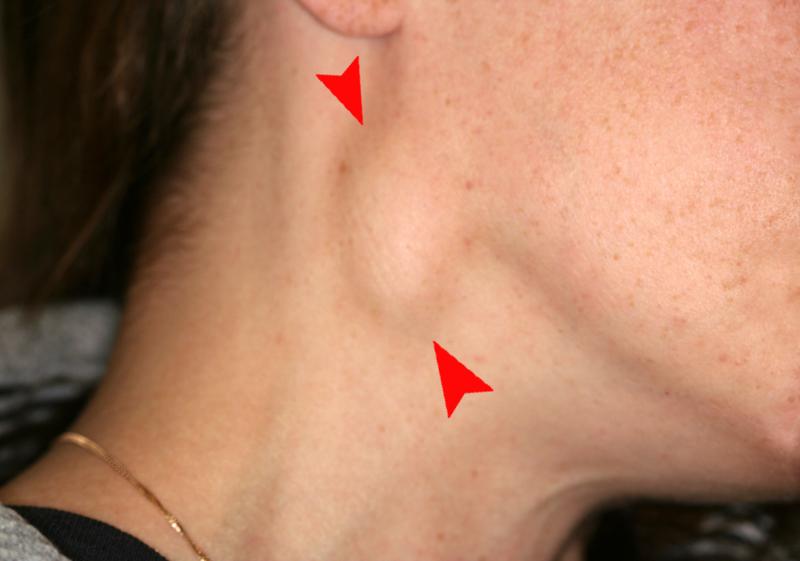 Ganglios inflamados cuello por mucho tiempo en ninos
