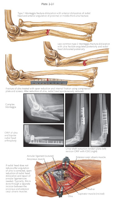 FRACTURE OF SHAFT OF ULNA
