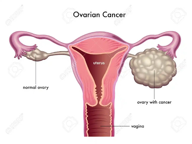 Symptoms and Risk Factors of Ovarian Cancer