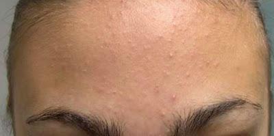 tiny bumps