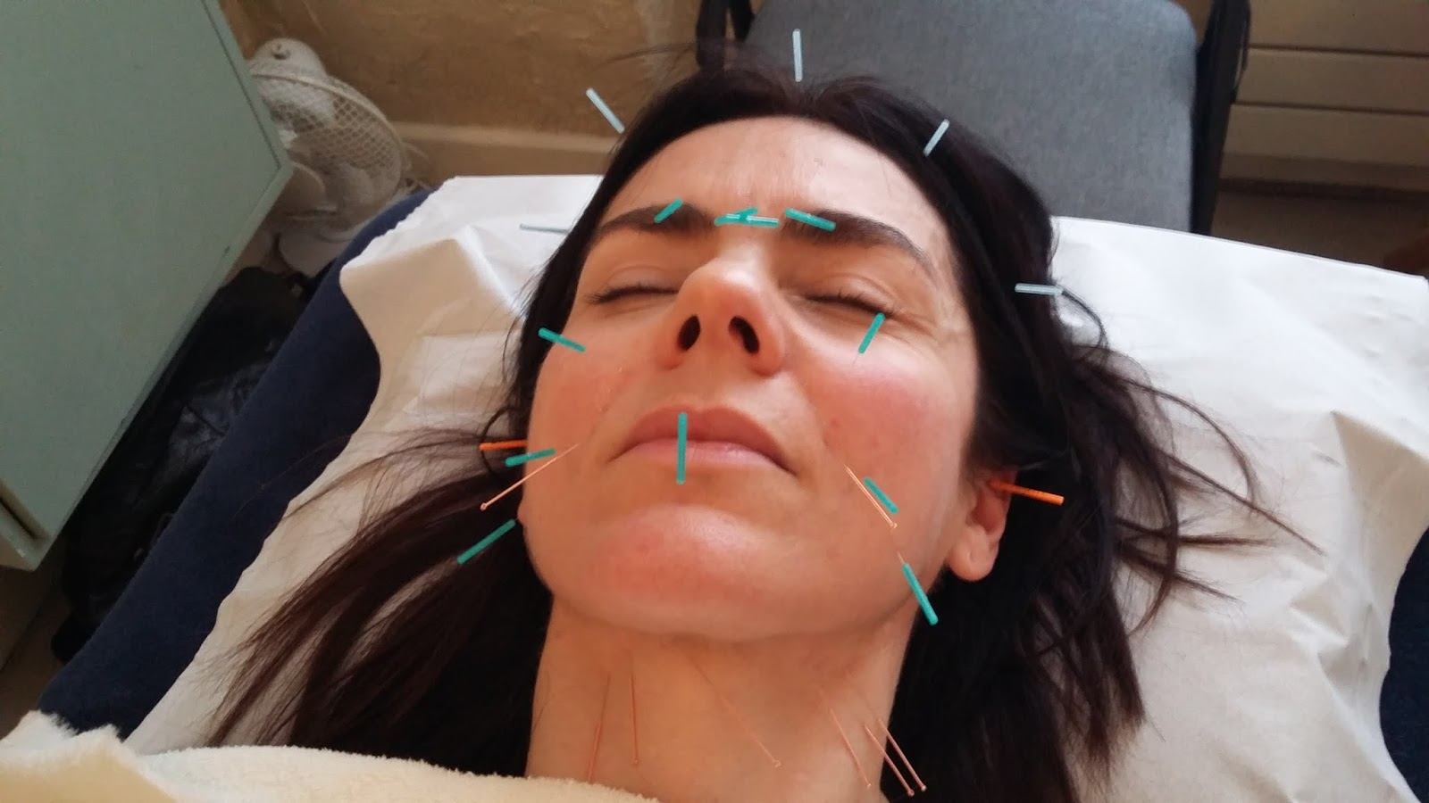 The rejuvenating acupuncture facial it doesnt hurt honest calling melanies facial rejuvenation acupuncture an acupuncture facial is a disservice as it also includes cupping and massage its a two hour treatment solutioingenieria Image collections