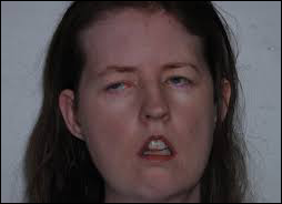 myotonic dystrophy, herbal remedies