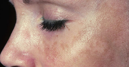 Treating Melasma Vitiligo Hypo-pigmentation And Hyper-pigmentation