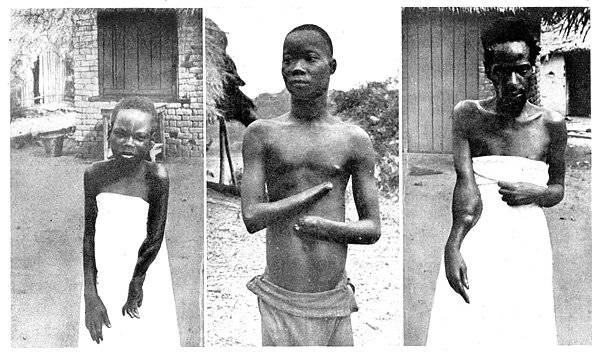 justified violence in the belgian congo essay Britain, france, germany, belgium, italy freedom of trade in the congo basin invasion, and colonization of africa by various european powers.