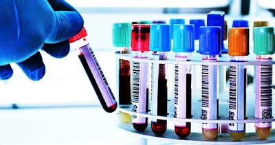 Novo exame de sangue garante prever a probabilidade de morte nos próximos 5 ou 10 anos