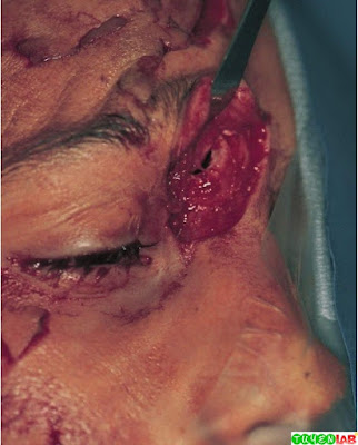 Frontal Sinus Fracture