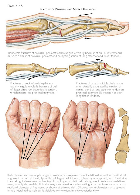 INJURY TO FINGERS
