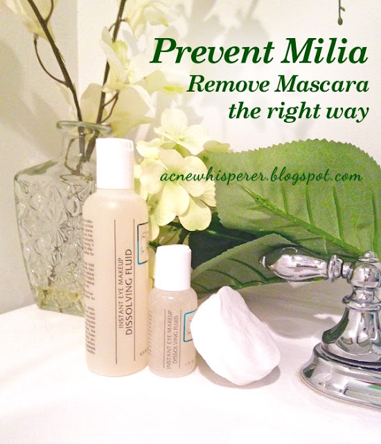 Prevent Milia by removing your mascara the right way!
