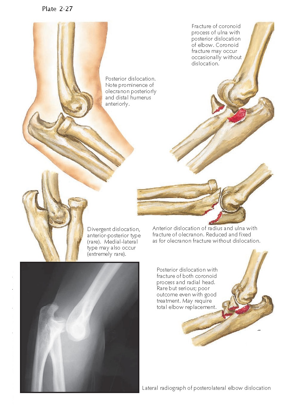 DISLOCATION OF ELBOW JOINT