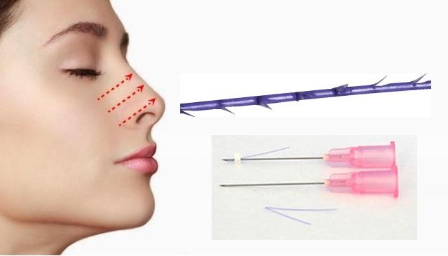 Nâng mũi không phẫu thuật bằng chất làm đầy filler