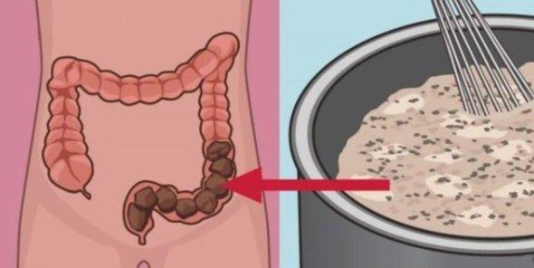 Acest remediu va garanteaza detoxifierea colonului!