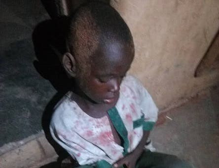 THIS WORLD IS WICKED!! Ritualist Cuts Off The Hand Of A 7-Year-Old Hausa Boy In Kwara