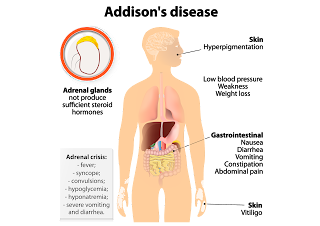 gafacom image result for the Primary adrenal insufficiency (Addison disease)