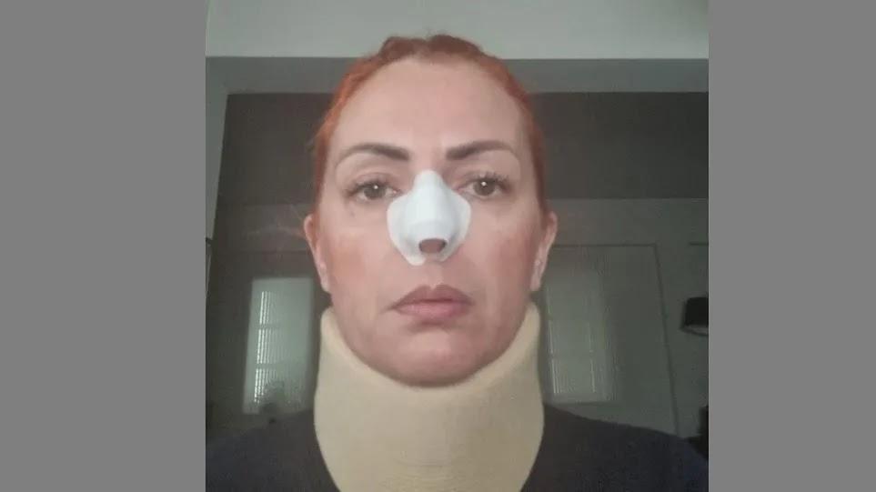 Γυναίκα στην Κρήτη που της επιτέθηκε αλλοδαπός για να την βιάσει: Δεν έχω συνέλθει
