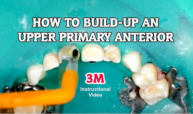 PEDIATRIC DENTISTRY: How to build-up an upper primary anterior in a 3-year-old child with strip crowns?