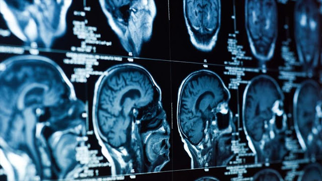 Para entender la realidad nuestro cerebro necesita… metáforas
