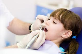 Răng sữa bị sâu có nên hàn lại không ?