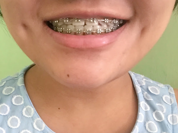 Metalmouth no more