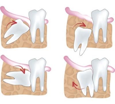 Biểu hiện của răng khôn mọc