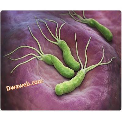 الميكروب الحلزوني وعلاجه