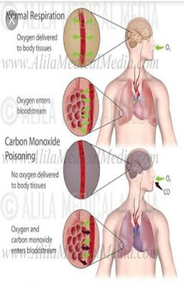 Carbon monoxide poisoning  diseases in human body