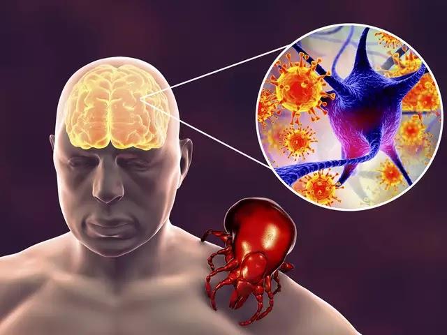 BUNYAVIRUS China, SFTS Virus