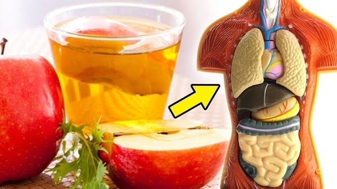 Vinagre de maçã emagrece? Veja como usá-lo corretamente