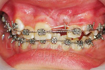 Ортодонтическое лечение ретинированного зуба