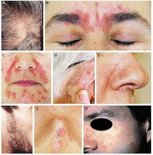 Natural Remedies For Skin Rash On Back