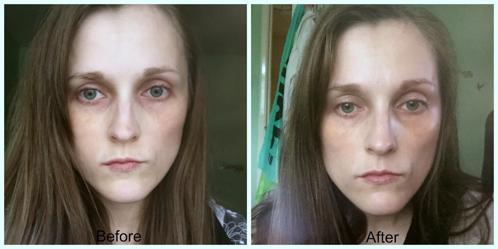before and after skinchemists bee venom facial serum