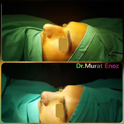 Rhinoplasty In Men,Rhinoplasty In Istanbul,Nose Job For Male,Rhinoplasty In Turkey,