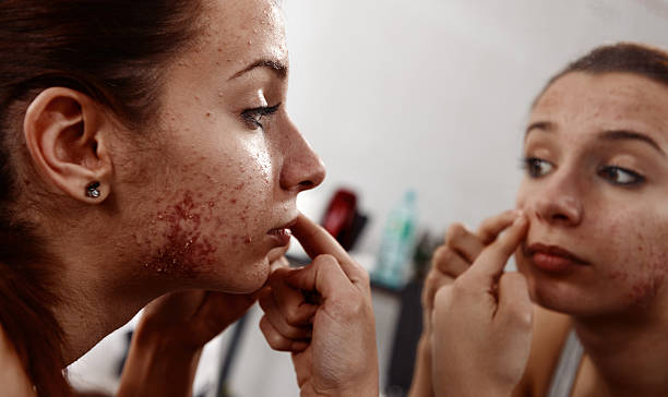 pimples treatment at home