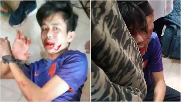 Penusuk Syekh Ali Jaber Disebut Alami Gangguan Jiwa, Ini Kata Polisi