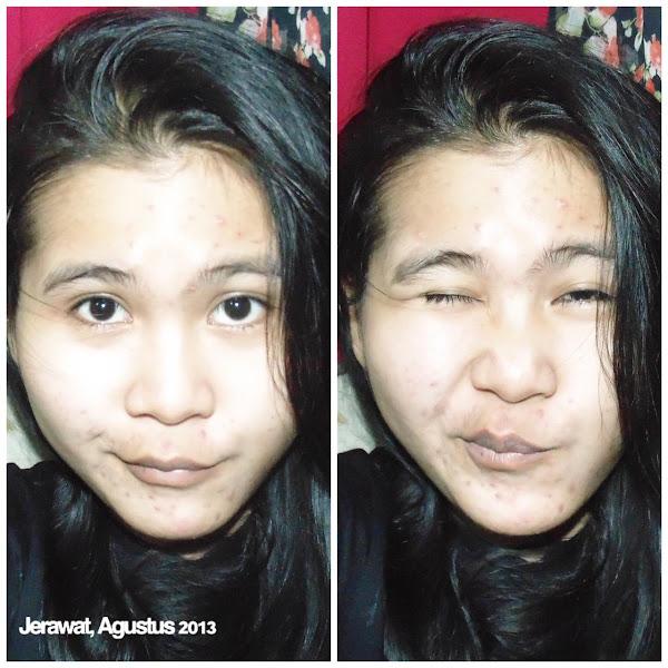 Glow Up Lebaran Pakai Scarlett Acne Serum dan Brightening Facial Wash!
