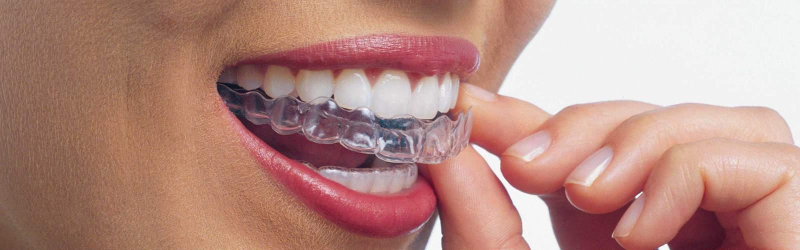 How do you take care of Invisalign braces?