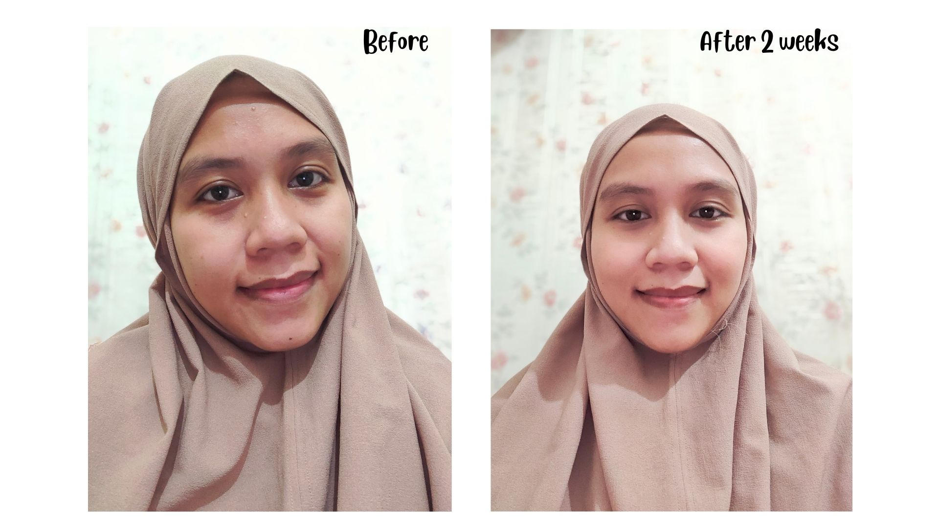 before after base skincare