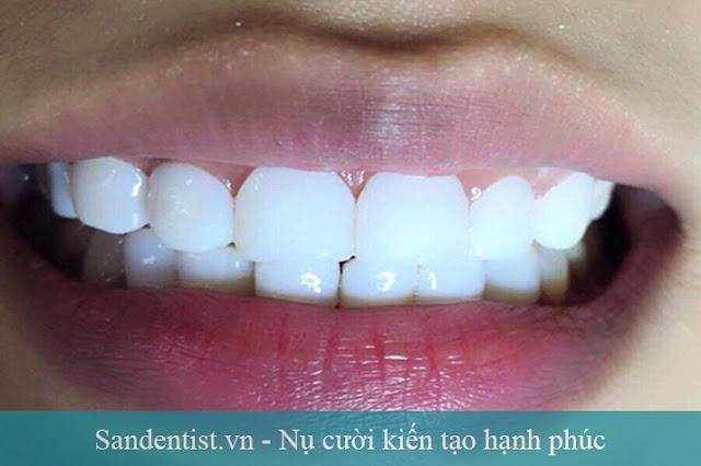 Cảnh báo viêm nướu mất răng do phủ răng sứ nano sai cách