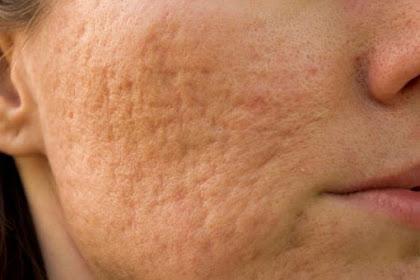 Tips Mengecilkan Pori-pori Wajah Secara Alami