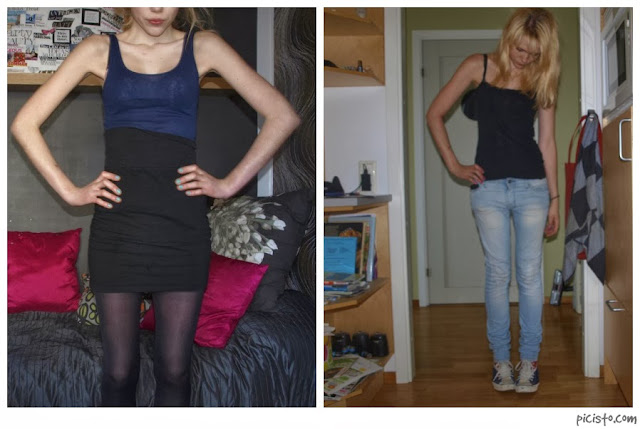 before and after thinspo | Tumblr  |Bulimia Before And After Tumblr