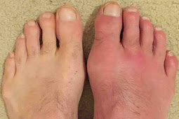Gout Symptoms in Foot
