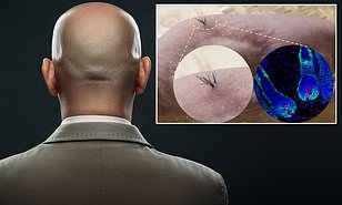 A cure for baldness is on the way as scientists successfully grow 'unlimited' hair on mice using stem cells