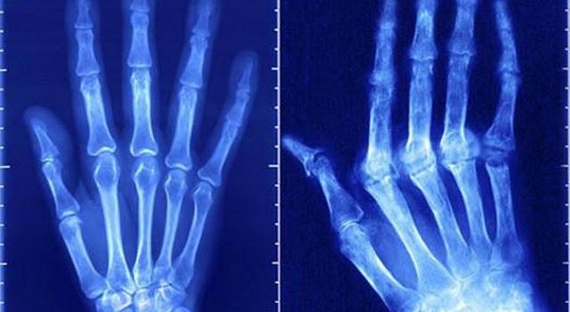 Artrite reumatoide - Conheça a doença, causas, sintomas, como tratar, dicas e muito mais